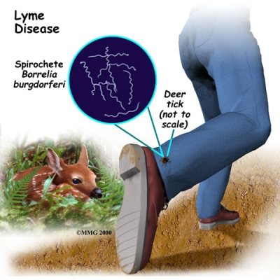 lyme disease ATTACK!
